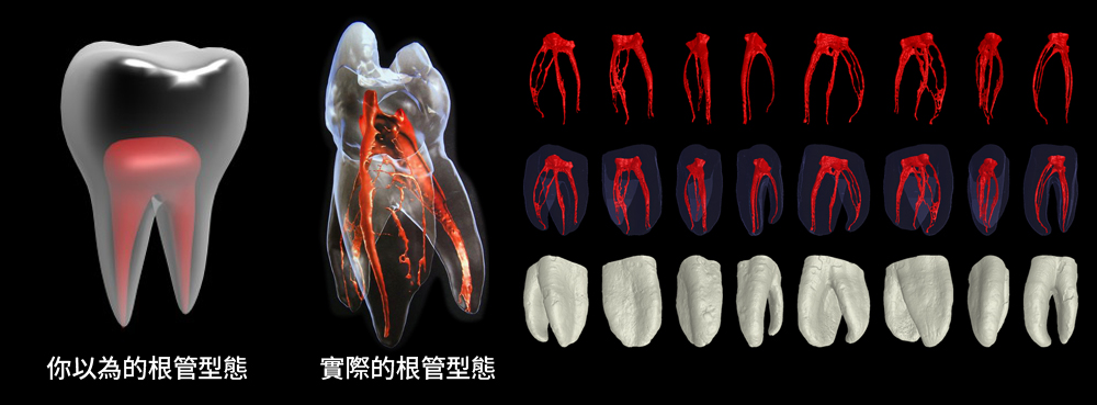 根管治療要多久,根管治療會不會痛,顯微根管