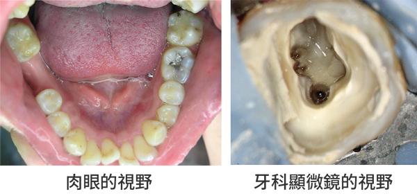 台中顯微根管,南投顯微根管,生活牙醫診所