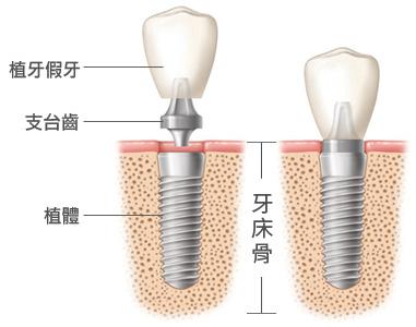 什麼是人工植牙